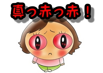 真っ赤の目.jpg